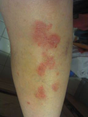 MY PSORIASIS IN MAY 2012 TWO